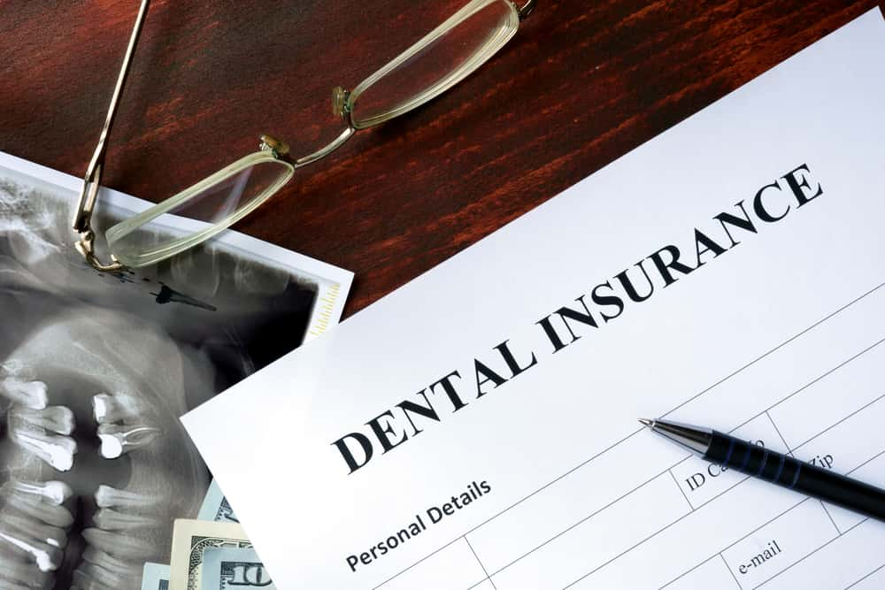 How Much Does It Cost To Get Wisdom Teeth Removed With ...